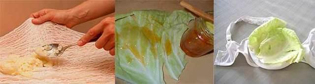 Капустный лист при лактостазе: как делать компресс, сколько держать, рецепты, эффективность и вред
