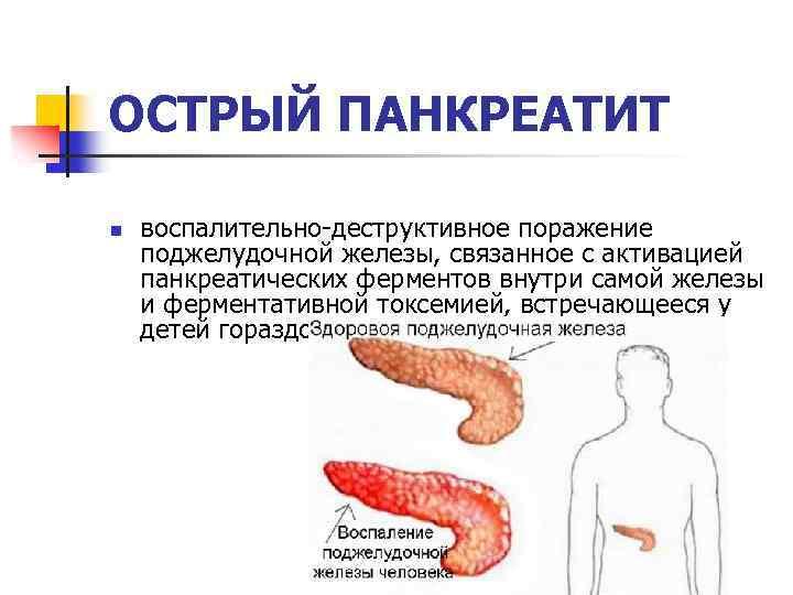 Панкреатит у детей: симптомы и лечение острого и хронического воспаления поджелудочной железы | заболевания | vpolozhenii.com