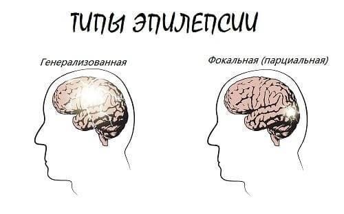 Эпилепсия - что это? причины, признаки и формы, лечение и препараты