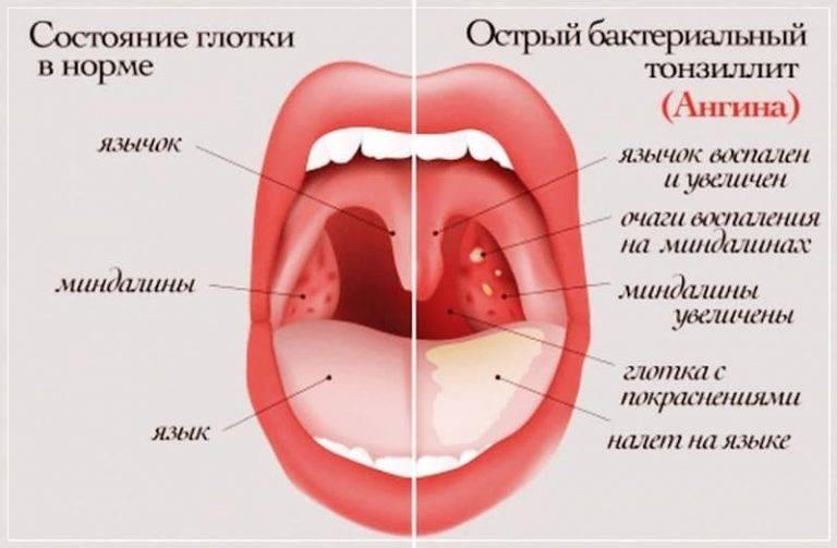 Катаральная ангина – симптомы и лечение