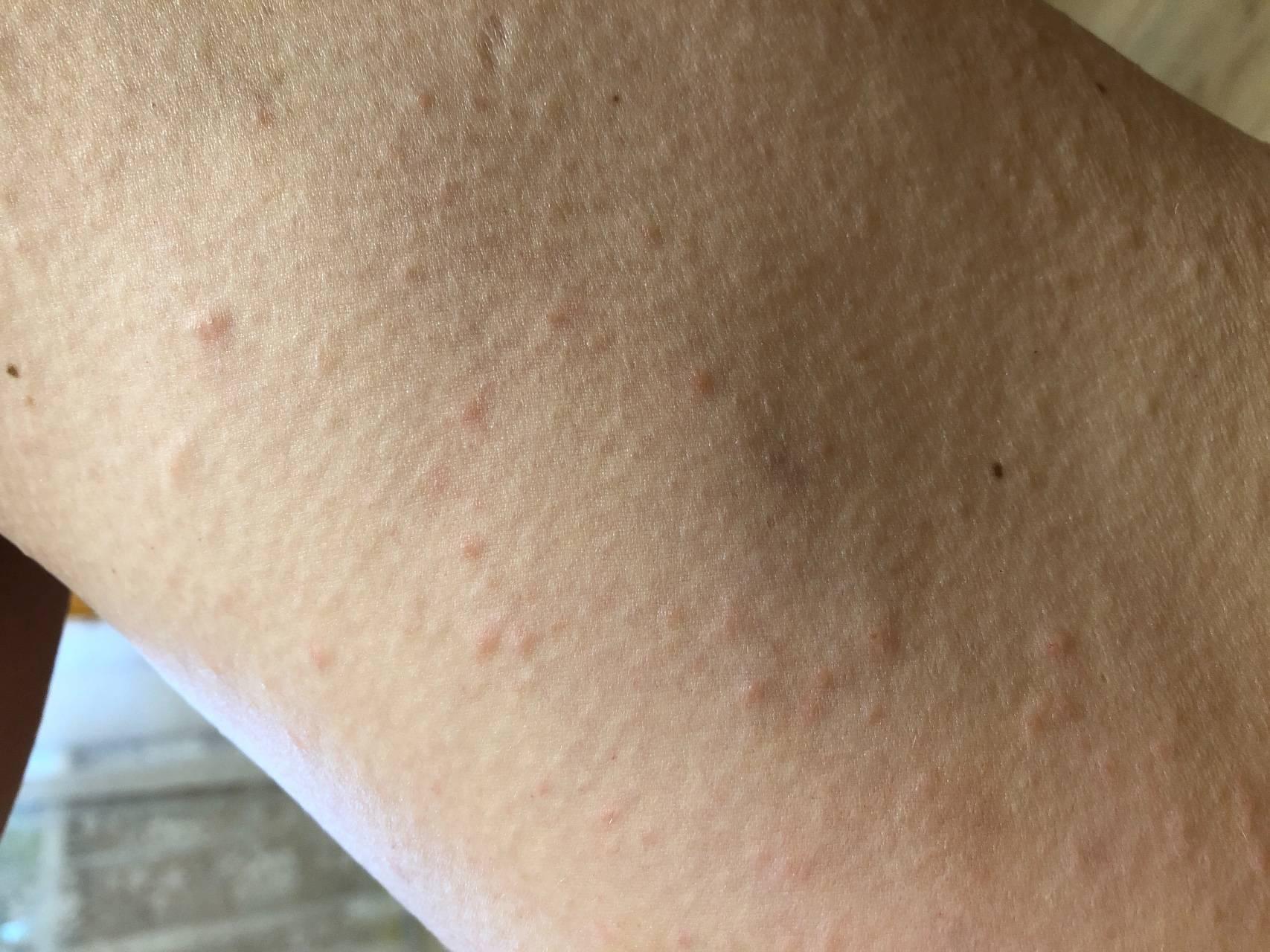 Сыпь после родов на теле чем лечить