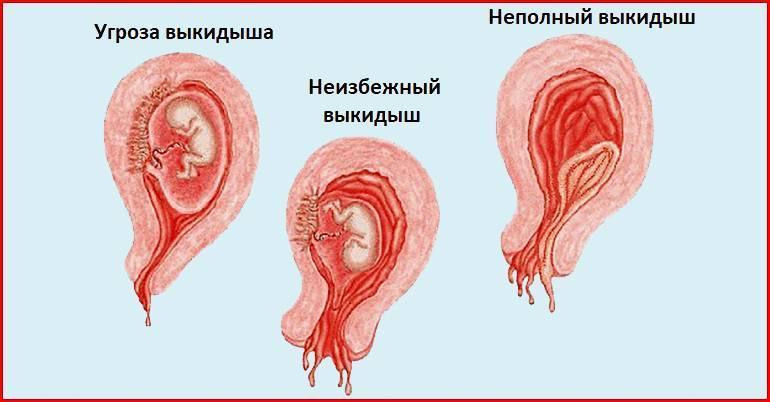 Угроза выкидыша на ранних сроках беременности: каковы симптомы, как предотвратить?