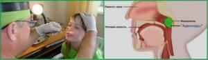 Степени аденоидов у детей лечение 1, 2, 3, 4 - диагностика и лечение аденоидов
