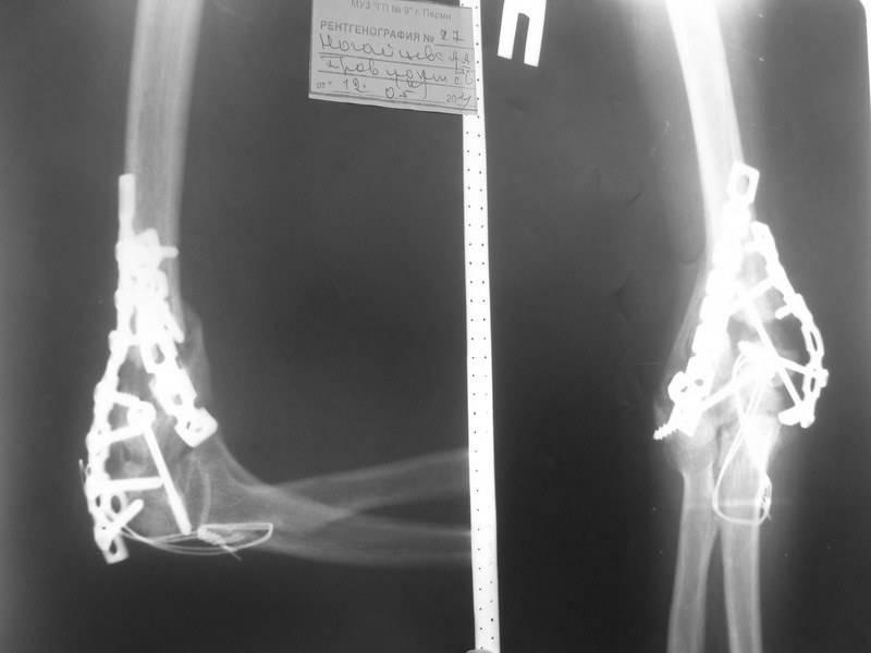 Чрезмыщелковый перелом плечевой кости у детей со смещением и без него