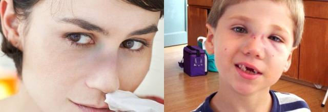 Перелом костей носа: симптомы, признаки, первая помощь, лечение, как выглядит сломанный нос, что делать при переломе носа