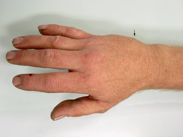 Перелом руки со смещением – причины, признаки и лечение