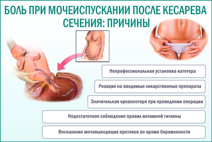 Выделения после кесарева сечения (лохии): сколько длятся, какие должны быть в норме по цвету и запаху
