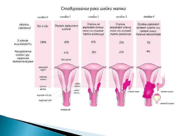 Какой на ощупь живот при беременности: как по животу определить беременность, ощупывание матки через живот