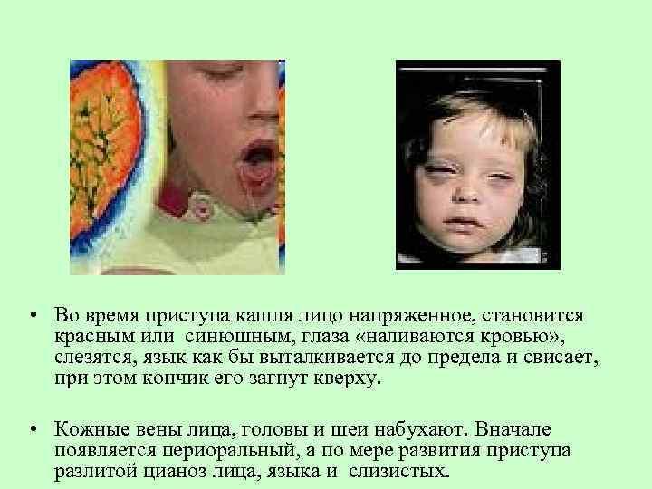 Коклюш у детей – симптомы и лечение. что такое, как лечить коклюш?
