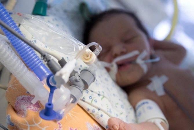 Асфиксия новорожденных — последствия для ребенка, реабилитация и профилактика