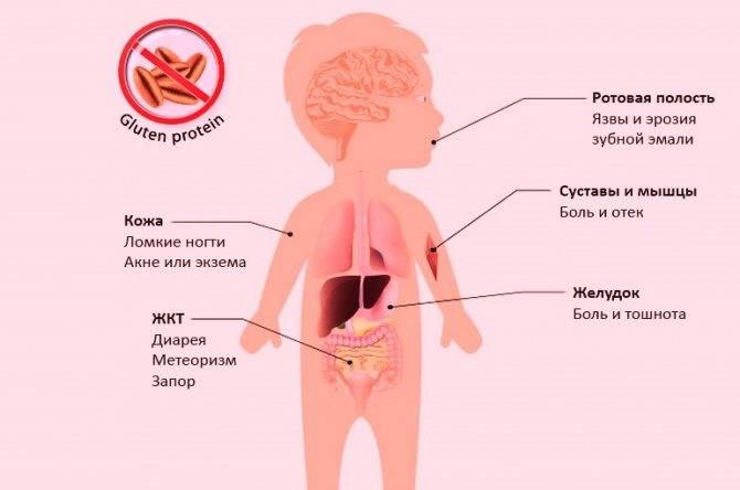 Аллергия на глютен у ребенка симптомы