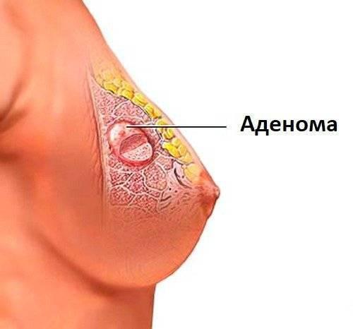 Появление уплотнений в молочной железе при грудном вскармливании