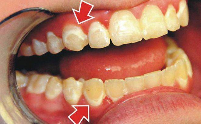 На зубе желтое пятно у ребенка и у взрослого: причины, как убрать, лечение