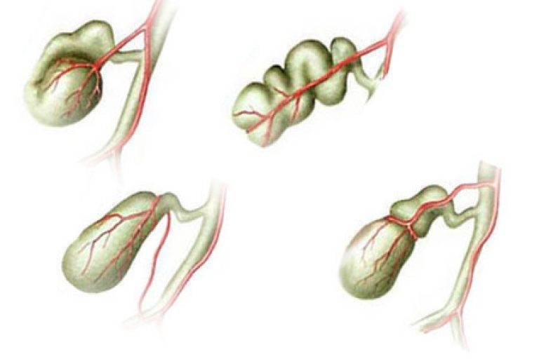 Загиб желчного пузыря у ребенка: симптомы и лечение