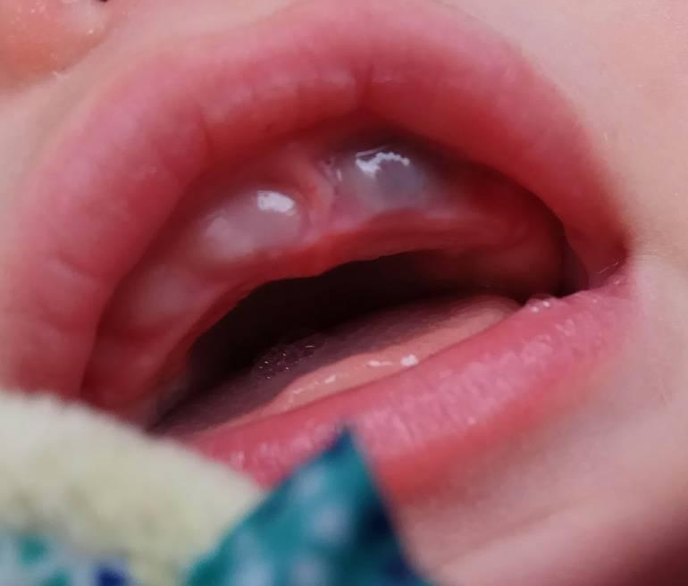 Десна при прорезывании зубов