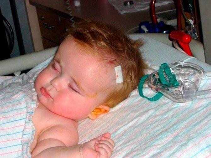 Гидроцефалия головного мозга у детей: симптомы, лечение и возможные последствия