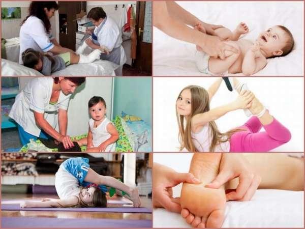 Признаки косолапости у детей с фото, методы лечения с помощью упражнений, массажа и обуви.