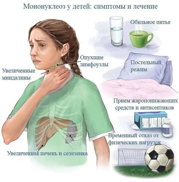 Мононуклеоз у детей – симптомы и лечение до полного восстановления малыша