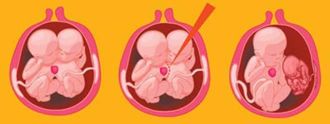 Замершая беременность: симптомы, причины, признаки, лечение