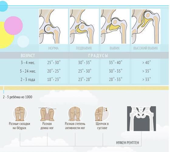 Узи тазобедренного сустава у грудничка расшифровка углы   спина доктор