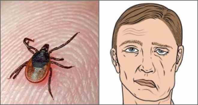 Клещевой боррелиоз: симптомы и последствия после укуса клеща