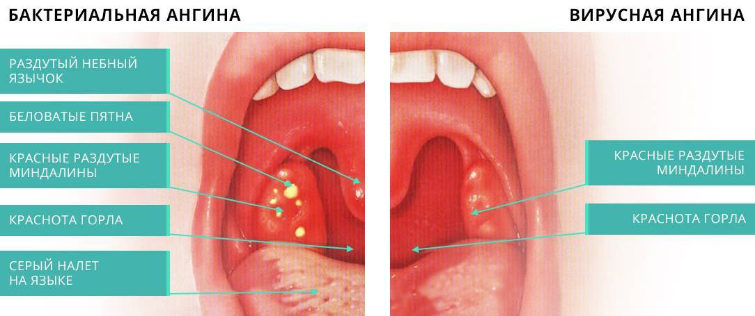 Белый налет в горле: у ребенка и взрослого. причины и лечение