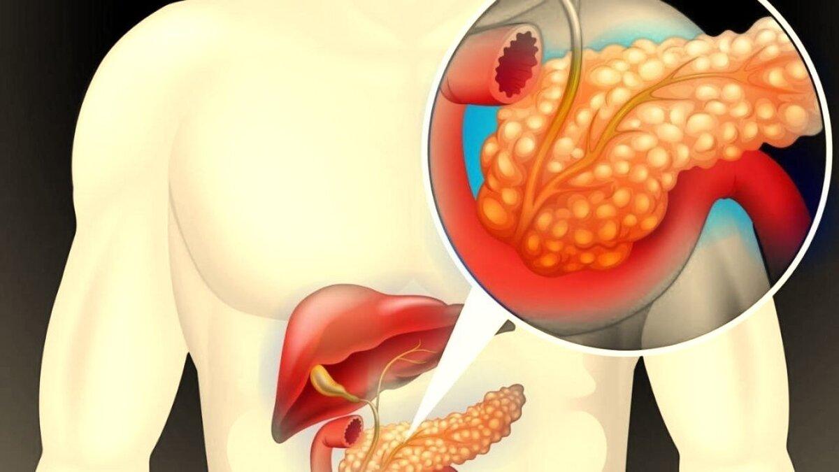 Лечение панкреатита: методы, способы и принципы лечения панкреатита