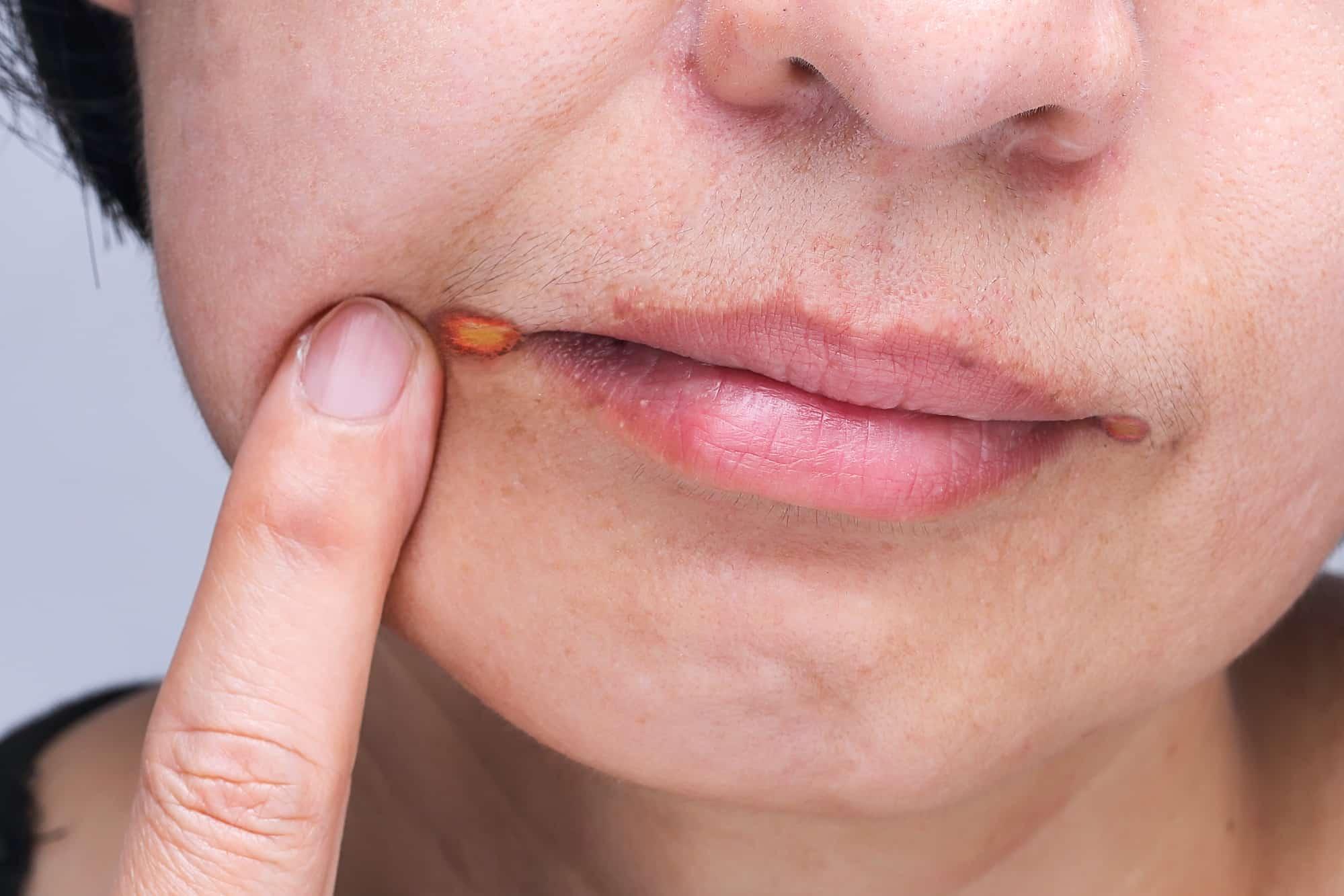 Заеды у ребенка в уголках рта: причины, лечение и профилактика