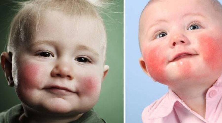 Симптомы и лечение экземы у детей: фото вирусной и других форм патологии на разных стадиях. причины появления экземы у ребёнка и способы её лечения