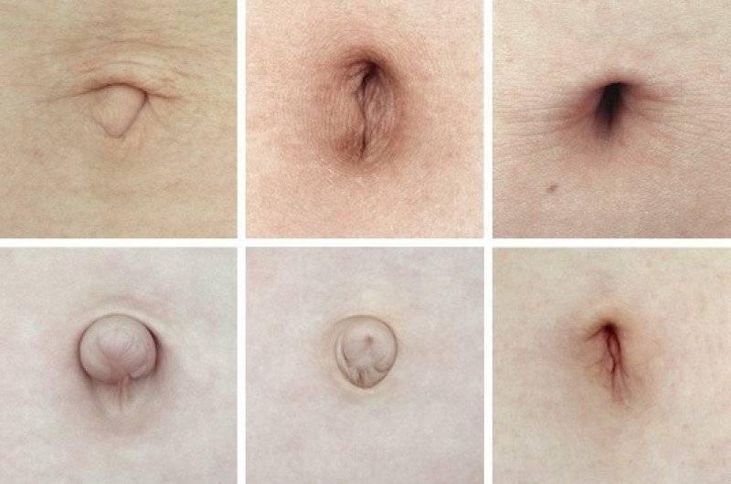 Пупочная грыжа у женщины после родов: почему растянулся пупок, что делать и как его убрать обратно?