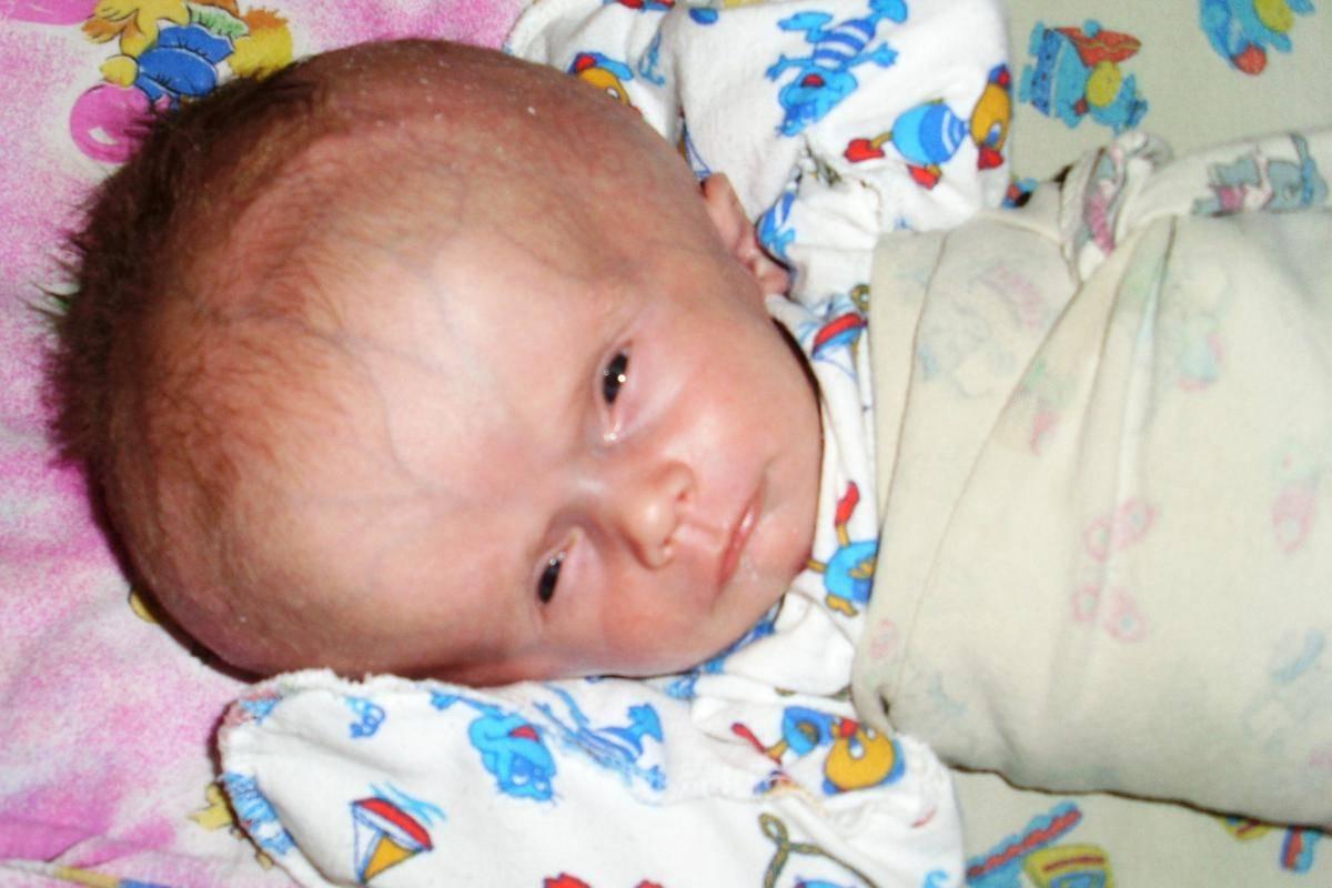 Симптомы и последствия гидроцефалии головного мозга у новорожденных детей