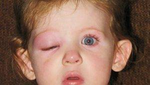Если опух глаз от укуса комара у ребенка - рекомендации по лечению