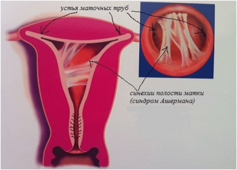 Как выглядят синехии у девочек — фото. причины и лечение синехии