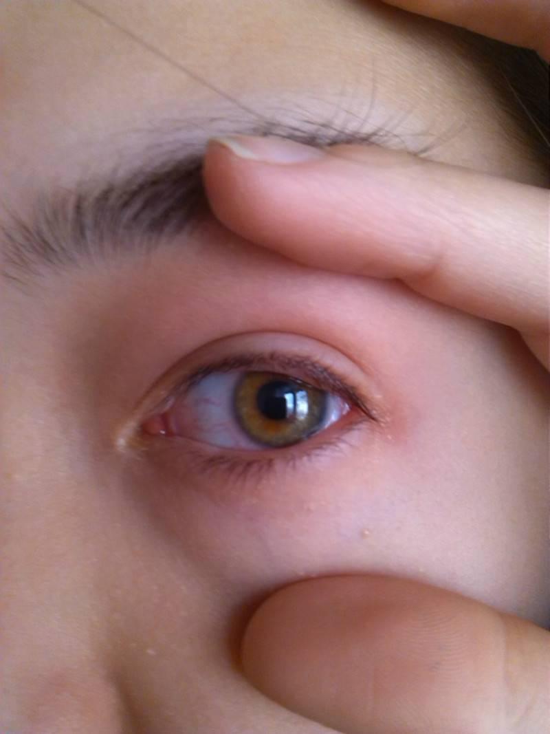 Шишка на веке глаза: причины, виды и лечение
