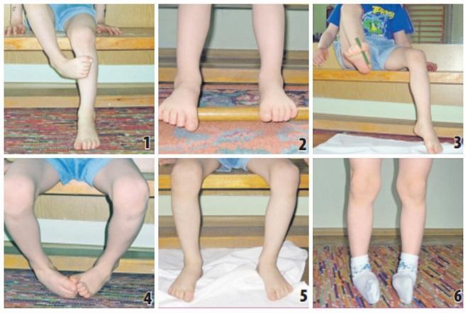 Лечение вальгусной деформации коленных суставов у детей с применением лфк - все о суставах