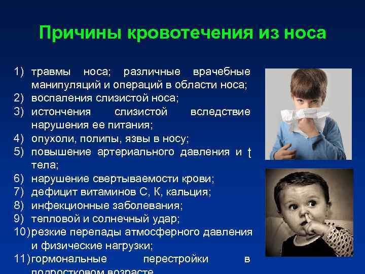 Почему у ребенка из носа идет кровь и как ее остановить?