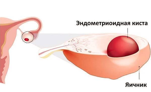 Можно ли забеременеть с эндометриоидной кистой яичника: возможно ли зачатие и насколько опасным является образование