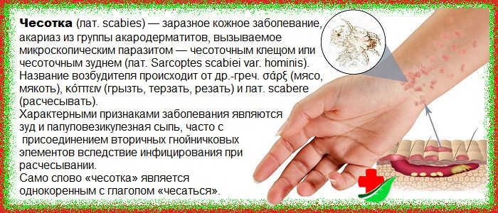 Чесотка у детей: причины, симптомы, лечение, фото, препараты, комаровский, чем лечить,