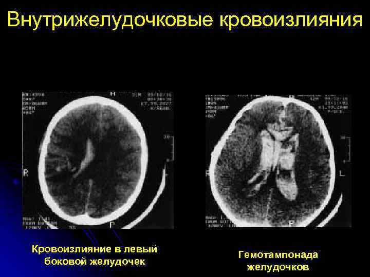 Ушиб мозга кровь в боковом желудочке прогноз. внутрижелудочковое кровоизлияние у новорожденных: как снизить риски и последствия