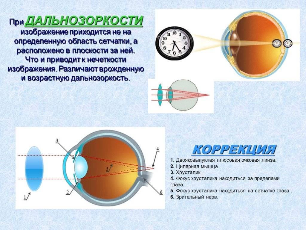 Дальнозоркость у подростков причины - лечение глаз