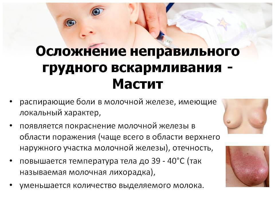 При грудном вскармливании простудила грудь — про маму