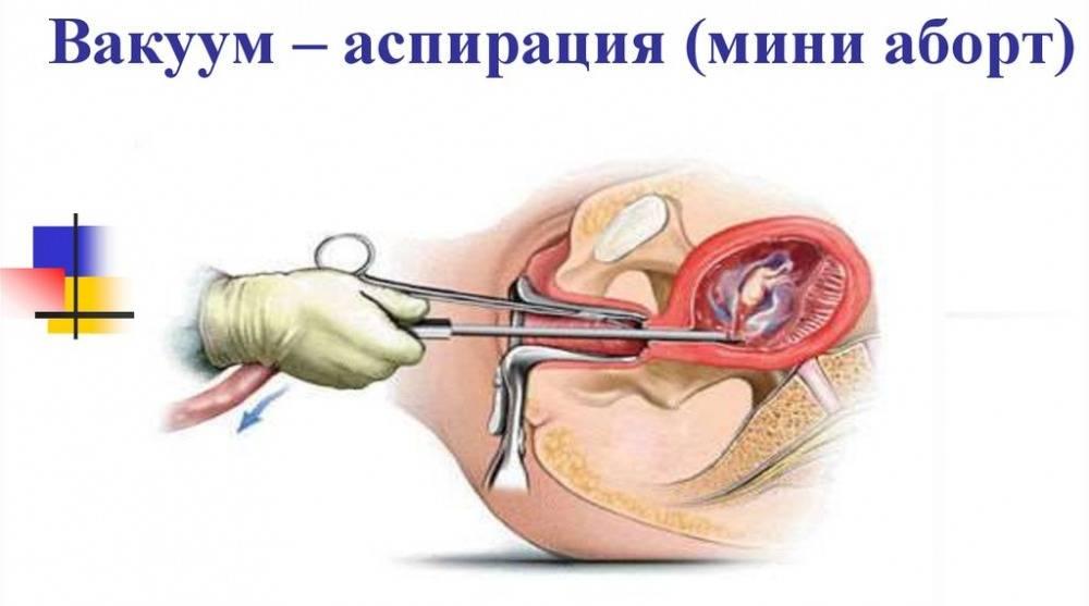 Аборт на 15неделе: можно ли делать и существует ли опасность такого прерывания беременности?