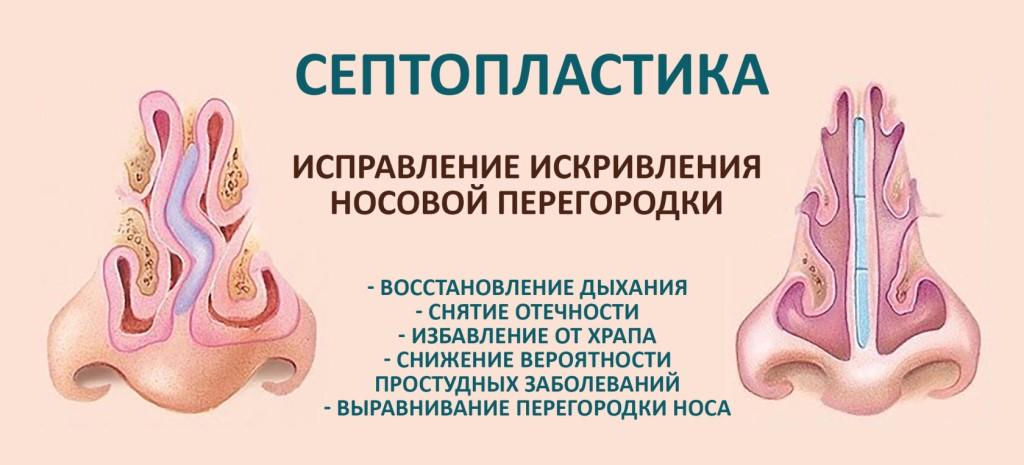 Лечение вазомоторного ринита. симптомы, виды, способы, средства