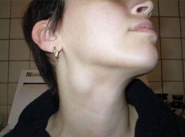 Воспаление лимфатических узлов за ушами: причины и возбудители, симптомы, как лечить