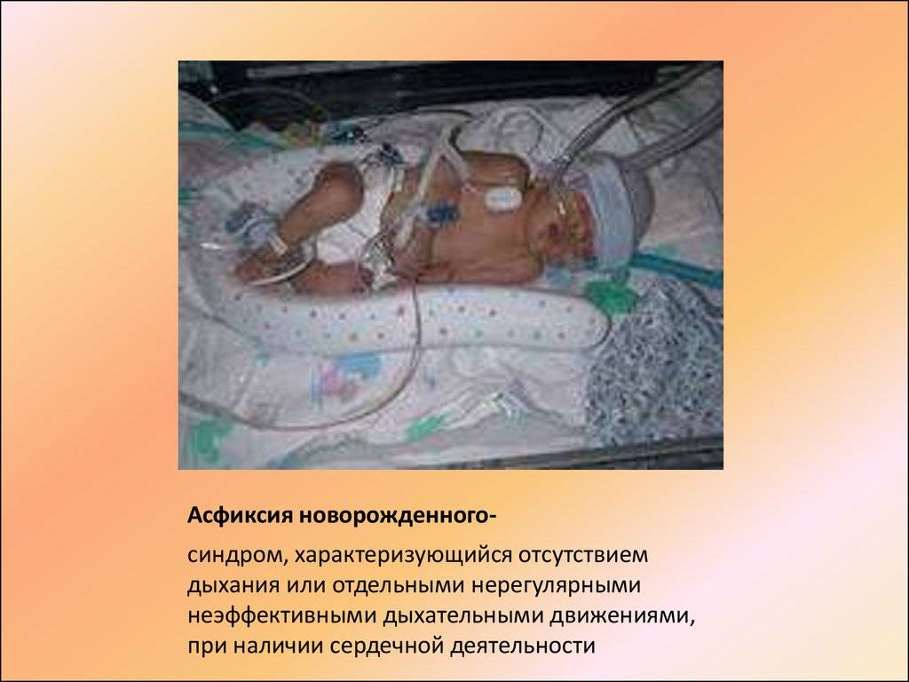 Асфиксия новорожденных: последствия для ребенка, помощь, лечение и реабилитация - знающийдоктор