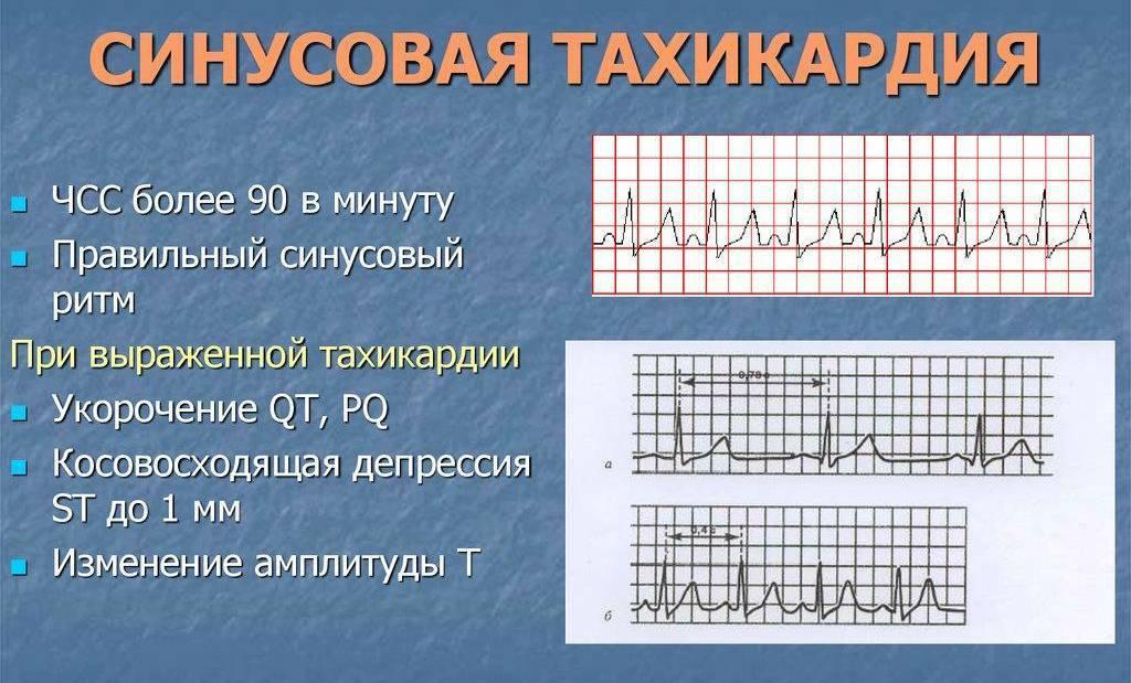 Синусовая тахикардия у ребенка: легкая, умеренная и выраженная