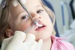 Удаление молочных зубов у детей: показания, последствия, больно ли это делать? | spacream.ru