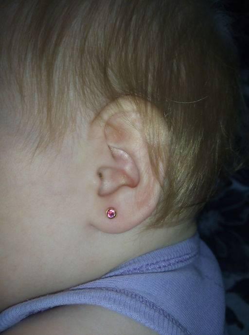 За сколько зарастают уши сразу после прокола или без сережек у детей и взрослых