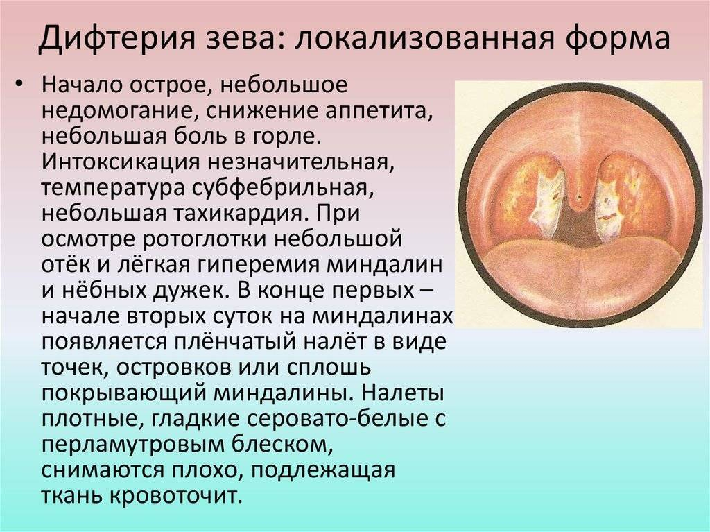 Дифтерия: симптомы и лечение, профилактика, фото