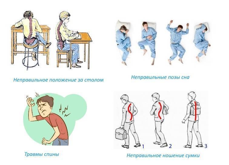 Искривление позвоночника у детей и нарушение осанки (46 фото): комплекс лфк и упражнения для исправления осанки, профилактика в школьном и дошкольном возрасте, как исправить сутулость в 10 лет и укрепить спину, электростимуляция, горб и остеохондроз